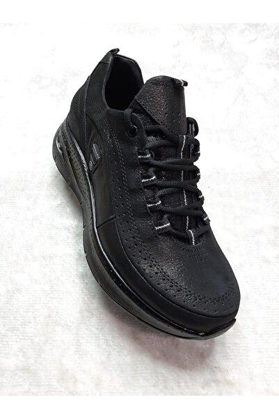 Mammamia Spor Taban Düşüklüğü Ve Topuk Dikenine Uygun Hem Şık Hem Rahat Günlük Kadın Ayakkabısı