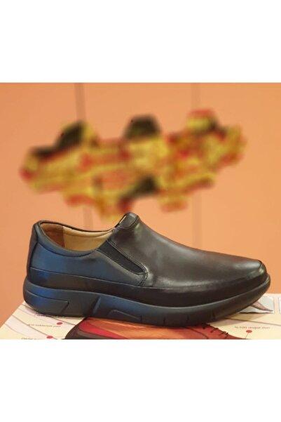 Esse Comfort Sistem Deri Siyah Bağcıksız Rahat Taban Günlük Erkek Ayakkabı(baba Ayakkabısı)28611