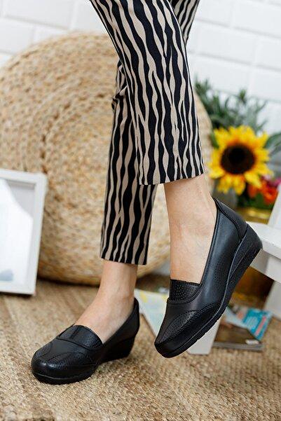 MUGGO A15 Ortopedik Anne Ayakkabı Hediye