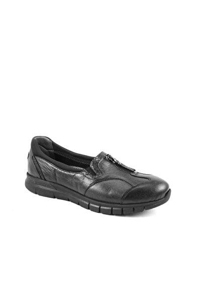 Forelli 29444 Kadın Siyah Deri Kemik Çıkıntısına Özel Comfort Ayakkabı