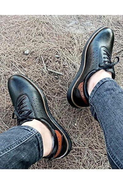 Everest %100 Deri Bağcıklı Kauçuk Ortopedik Taban Ayakkabı
