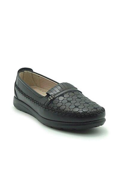 ModanınNabzı Siyah Ortopedik Comfort Anne Ayakkabı 211058syh