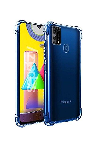 sepetzy Samsung Galaxy M31 Kılıf Köşe Korumalı Antishock Airbag Şeffaf Kapak