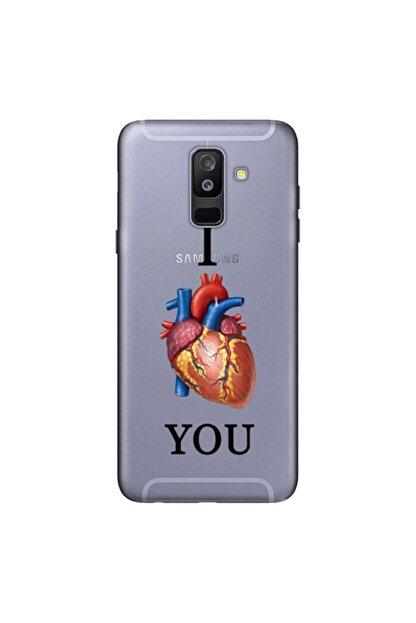 cupcase Samsung Galaxy A6 Plus 2018 Kılıf Esnek Kapak Love U Desen + Temperli Cam