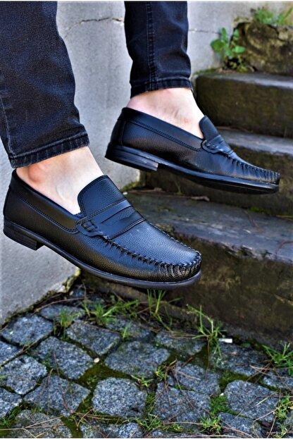 ALBİDÜNYA Erkek Siyah Ortopedik Tabanlı Günlük Ayakkabı