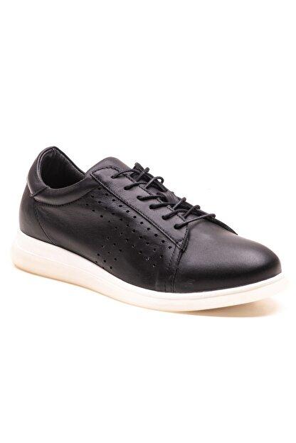 GRADA Siyah Deri Günlük Casual Kadın Ayakkabı