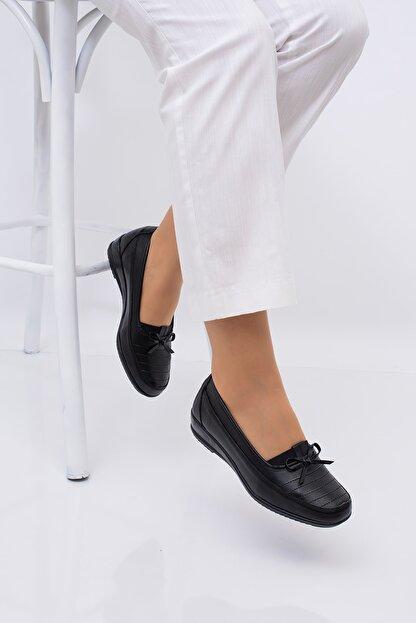 CARIK COMFORT Kadın Siyah Tam Ortapedık Ayakkabısı
