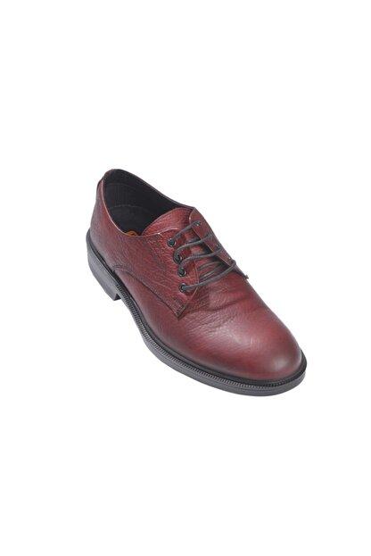 Rekirs Erkek Günlük Klasik Hakiki Deri Bordo Bağcıklı Ayakkabı