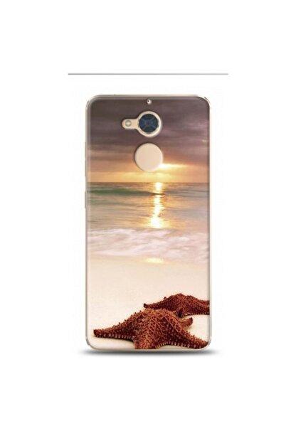 EXCLUSIVE Casper Via A1 Deniz Ve Yildizi Desenli Telefon Kılıfı