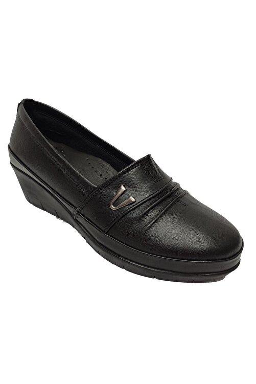 Scavia Kadın Siyah Hakiki Deri Ortopedik Ayakkabı 244-20 1