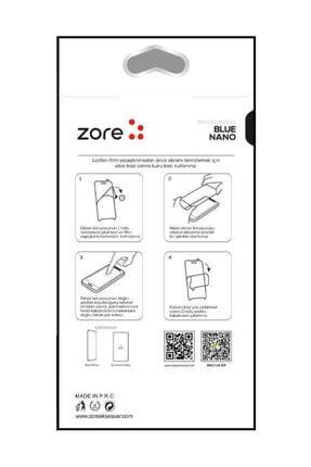 Dijimedia Huawei Mate 10 Pro Kılıf Şeffaf Köşe Korumalı+ekran Koruyucu Nano Cam 4