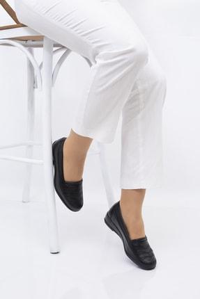 THE FRİDA SHOES Ortopedik Kadın Ayakkabı 0