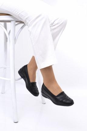 THE FRİDA SHOES Ortopedik Kadın Ayakkabı 2