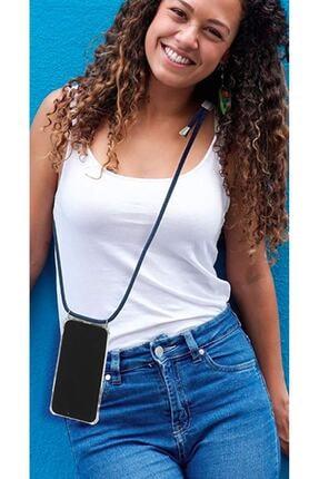 mtncover Iphone 6 Plus Için Boyun Askılı Şeffaf Çok Şık Kılıf Siyah-beyaz Zebra Ipli 4