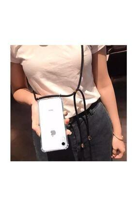 Atalay Iphone 7 Plus / 8 Plus Şeffaf Boyun Askılı Siyah Kılıf 1