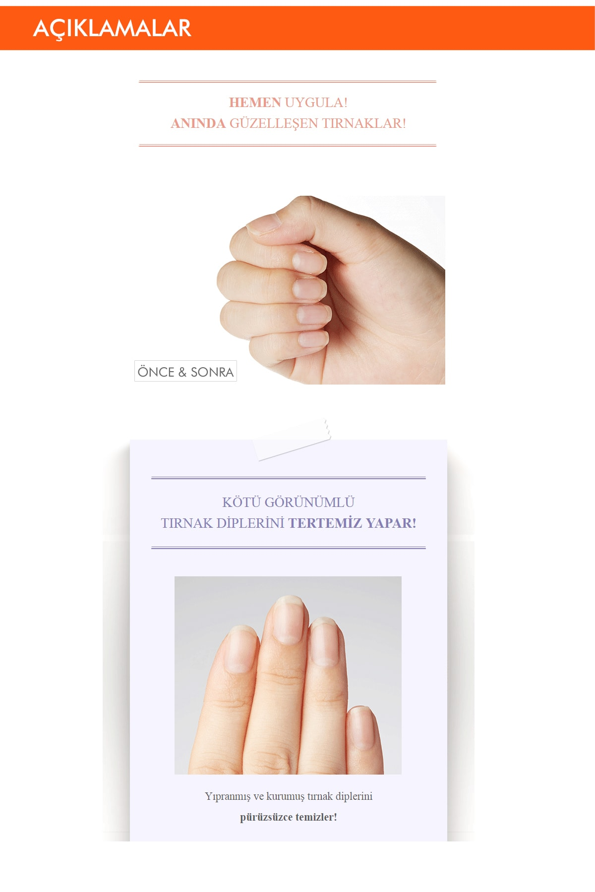 Missha Yıpranmış Ve Kurumuş Tırnak Dipleri İçin Bakım Kremi 10ml APIEU Ugly Cuticle Cream 1