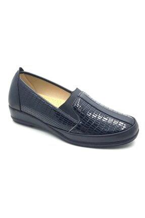 50881 Siyah Ortopedik Kadın Topuk Dikeni Pedli Rugan Ayakkabı resmi