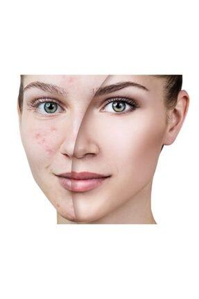 Belize Cosmetics Leke Giderici Ve Leke Karşıtı Cilt Bakım Kremi 30 Gram 1