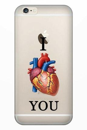Cekuonline Iphone 6 6s Tıpalı Kamera Korumalı Silikon Kılıf - Love U 0