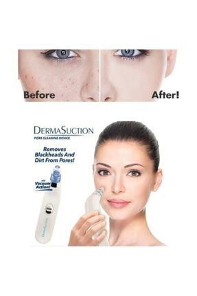 dermasuction Aks Suction Vakumlu Siyah Nokta Ve Yüz Temizleme Cihazı Aks Kozmetik 1