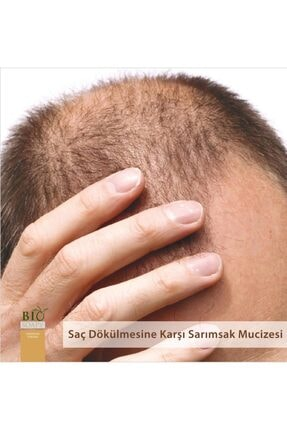 Biosoapy Doğal Sarımsak Sabunu 100 gr X 3 Adet (Saç Dökülmesine Karşı Etkili) 1