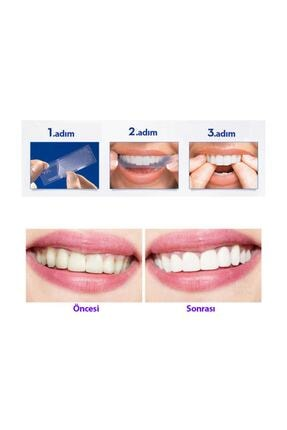 CREST 3d Whitestrips Professional Effects Diş Beyazlatma Bantları (1 Kutu / 40 Bant) 4