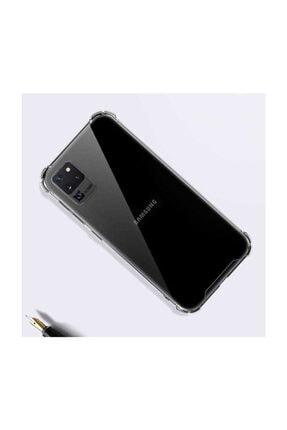 Dijimedia Samsung Galaxy S20 Ultra Kılıf Şeffaf Köşe Korumalı+ekran Koruyucu 3