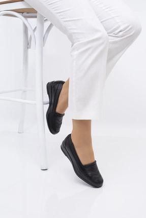 THE FRİDA SHOES Ortopedik Kadın Ayakkabı 1