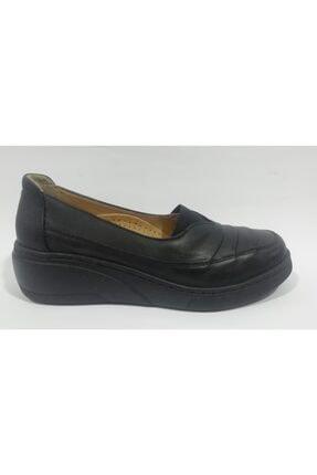 Kadın Siyah 35 Numara Ortopedik Ayakkabı SDFCNL7825