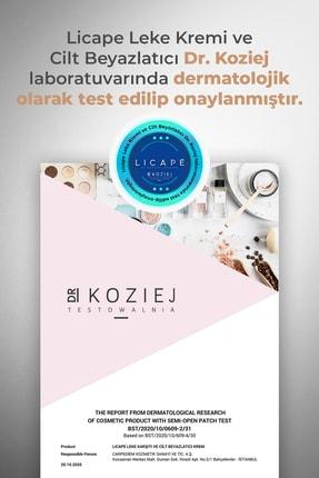 Licape Leke Kremi Ve Cilt Beyazlatıcı + Forever Yüz Temizleme Cihazı Hediyeli 3
