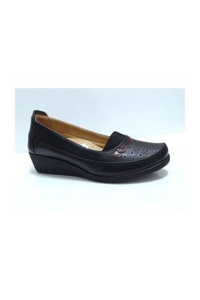 Elissa Ortopedik Anne Ayakkabısı 1