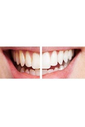 Staino Diş Leke Silgisi Beyazlatıcı Silgi 1