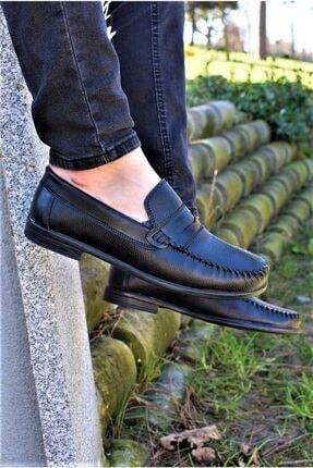 ALBİDÜNYA Erkek Siyah Ortopedik Tabanlı Günlük Ayakkabı 1