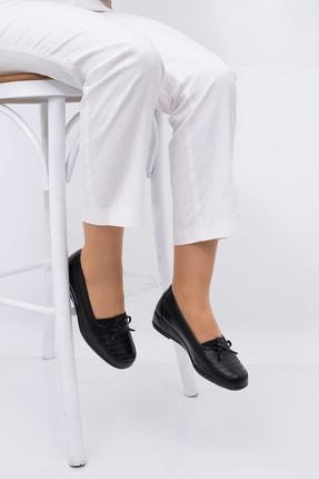CARIK COMFORT Kadın Siyah Tam Ortapedık Ayakkabısı 1