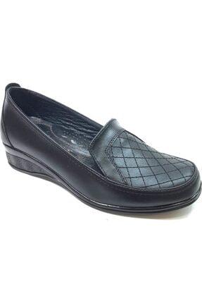 50819 Topuk Dikenine Özel Ortapedik Anne Ayakkabısı Siyah resmi