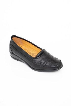 MelikaWalker Full Comfort Ortopedik Taban Bayan Ince Çizgili Siyah Anne Ayakkabısı 3