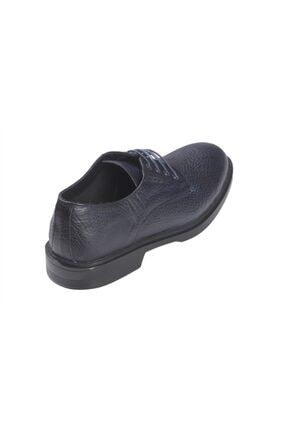 Rekirs Erkek Günlük Klasik Hakiki Deri Siyah Bağcıklı Ayakkabı 1