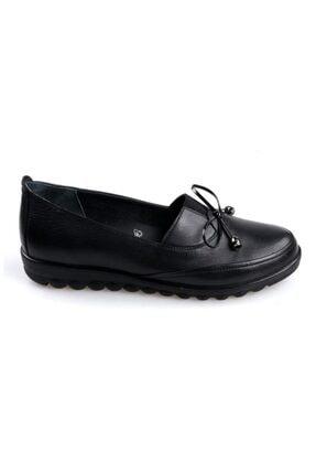 103135 Ortapedik Siyah Bayan Deri Günlük Ayakkabı resmi