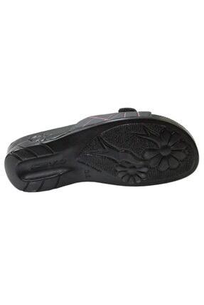 Ceyo Flora-5 Siyah Ortapedik Bayan Terlik & Sandalet 4
