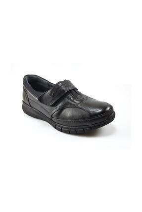تصویر از 29445 Günlük Ortopedik Kadın Ayakkabı - Siyah Kadın Ayakkabı Ayakkabı