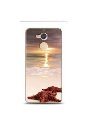 EXCLUSIVE Casper Via A1 Deniz Ve Yildizi Desenli Telefon Kılıfı 0
