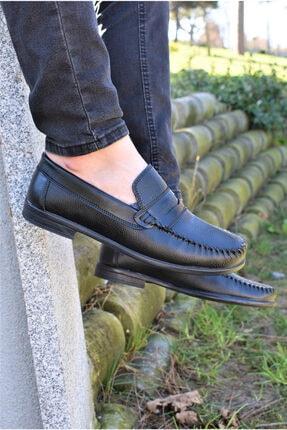 ALBİDÜNYA Ortopedik Astarlı  Günlük Ayakkabı 1