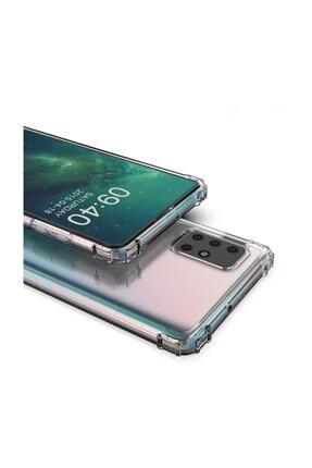 Dijimedia Galaxy A51 Kılıf Zore Nitro Anti Shock Silikon 2