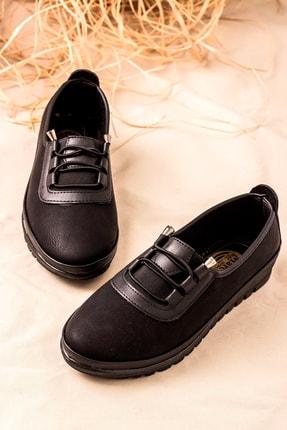 kısmetshoes Günlük Ortopedik Siyah Cilt Bayan Ayakkabı 1