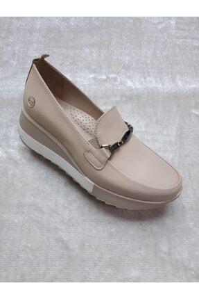 Mammamia Kadın Dolgu Deri Taban Düşüklüğü Ve Topuk Dikenine Uygun Günlük Ayakkabısı 1