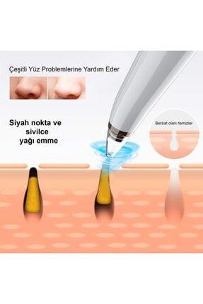 Cooltech 6 In 1 Ledli Şarjlı Vakumlu Yüz Temizleme Peeling Siyah Nokta Akne Sökücü Cihazı 4