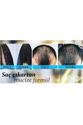 Nova Mavi Saç Dökülmesi Serum Tonik Su Ve Şampuan 1
